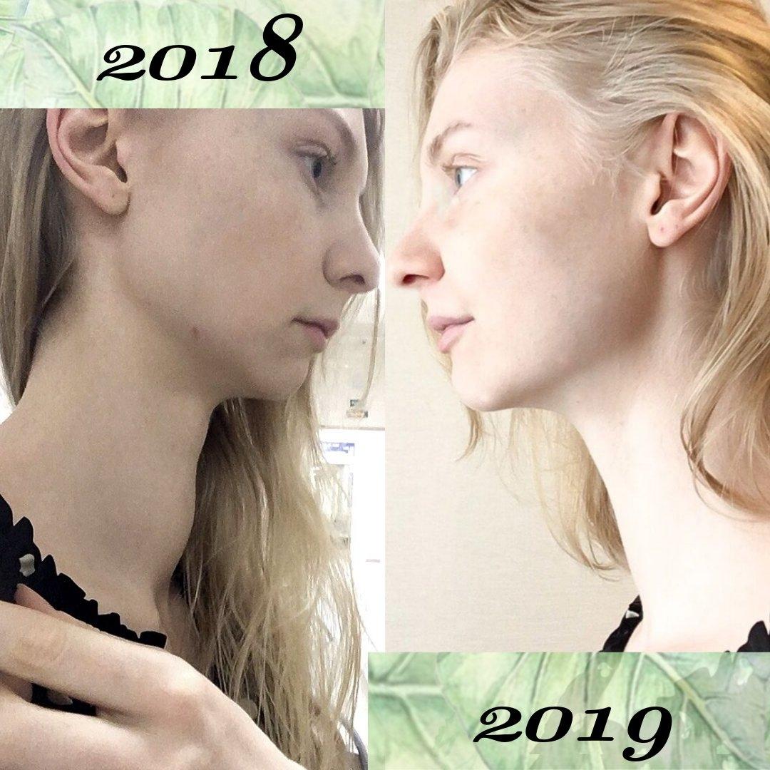 зоб до и после перехода на аип